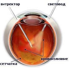 Операции при отслоении сетчатки глаза в новосибирске thumbnail
